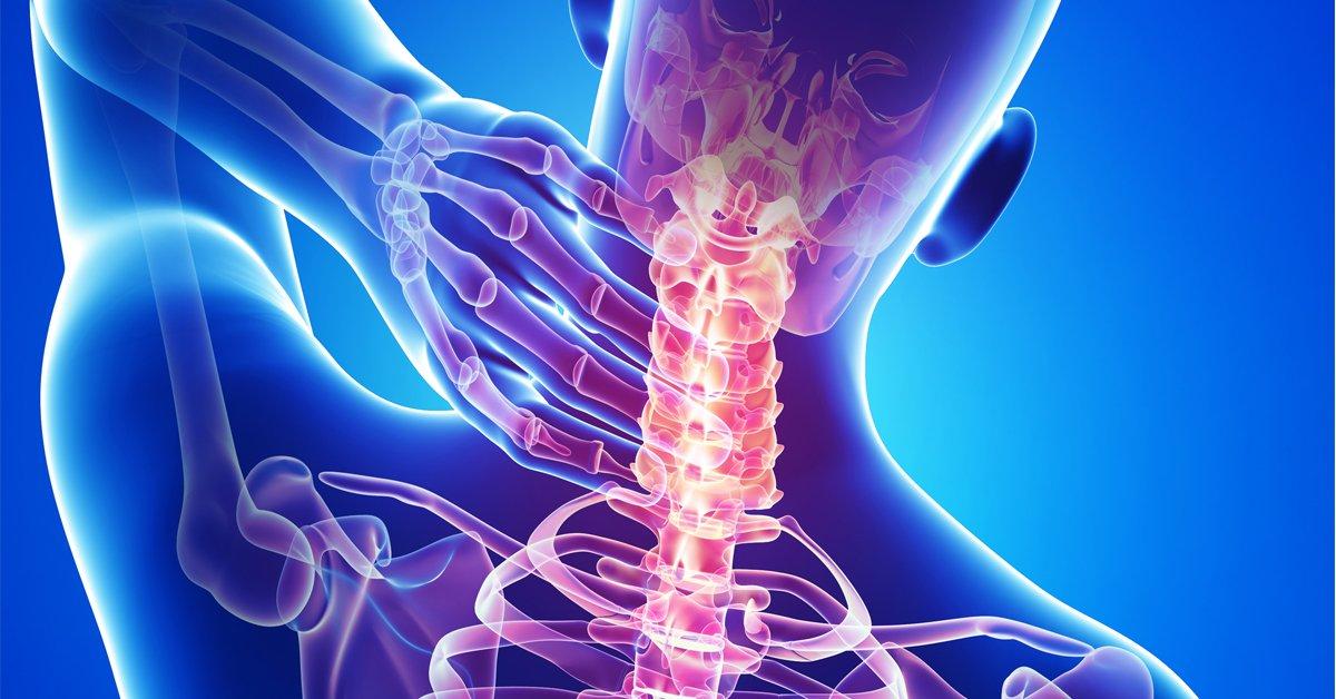 sintomas da coluna cervical inflamada