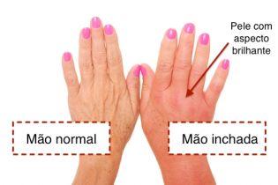 manchas vermelhas nas mãos
