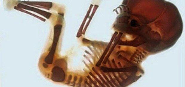 Quantos ossos tem o corpo humano bebé?