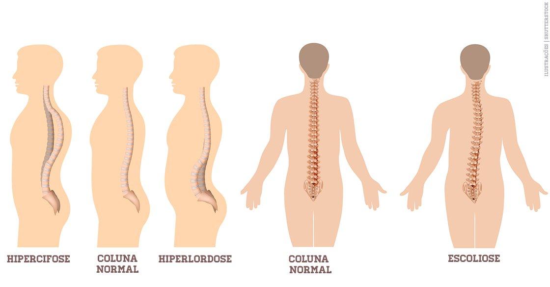 Dor cervical no lado esquerdo