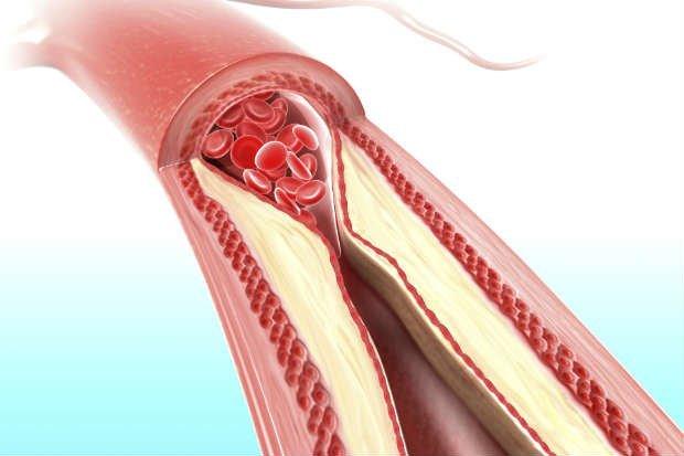 sintomas de infarto fulminante