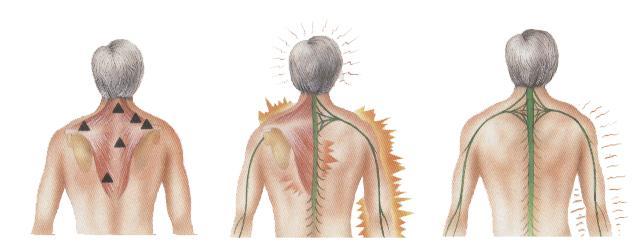 coluna cervical influencia as dores de cabeça