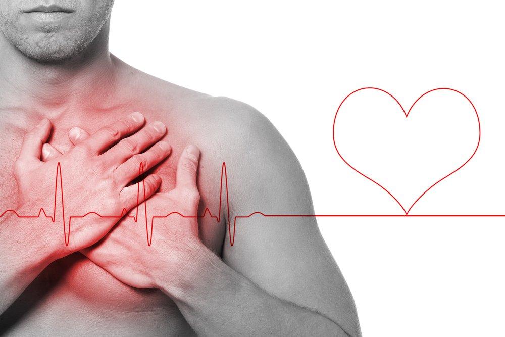 sintomas infarto jovem