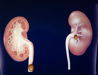 O que é ardência no canal da urina?