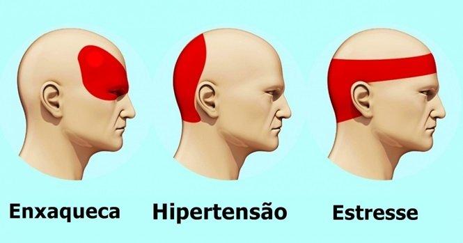 Tratamento do formigamento na cabeça
