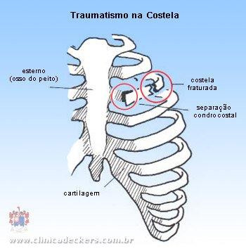 Tratamentos caseiros para dor nas costelas do lado esquerdo