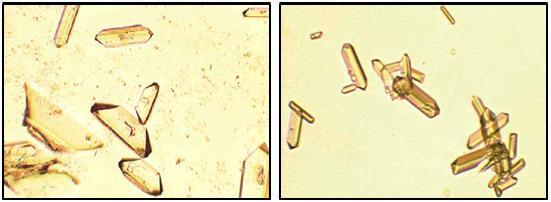 O que são cristais na urina?