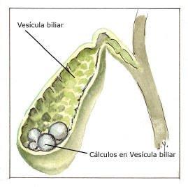 O que causa pedra na vesícula?