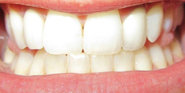 O Melhor Clareador de Dentes Caseiro!