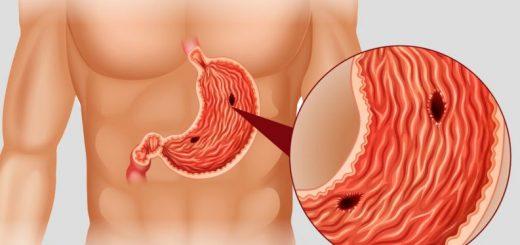 Polipos no estômago - Veja se sofre desta condição e o tratamentoPolipos no estômago - Veja se sofre desta condição e o tratamento