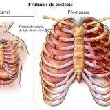 Tem dor na costela esquerda? Causas e um tratamento caseiro!