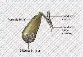 Sintomas de pedras na vesícula