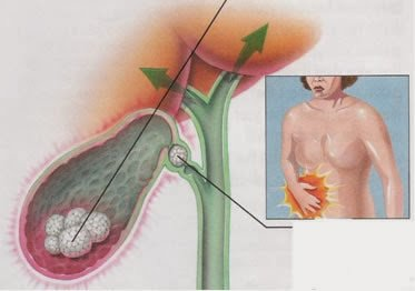Fatores de risco das pedras na vesícula