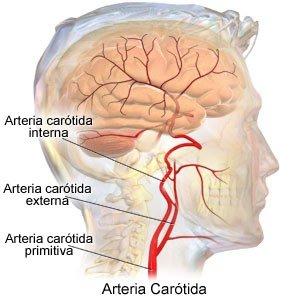 Dissecação da artéria carótida