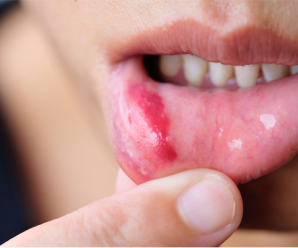 Qual a melhor pomada para ferida na boca?