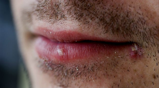 Ferida nos lábios