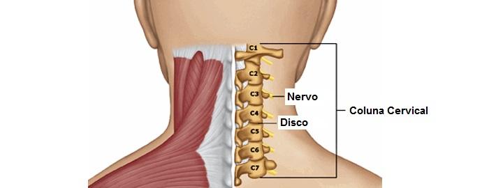 Causas da dor no pescoço do lado direito