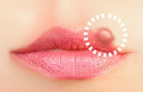 bolinhas na boca