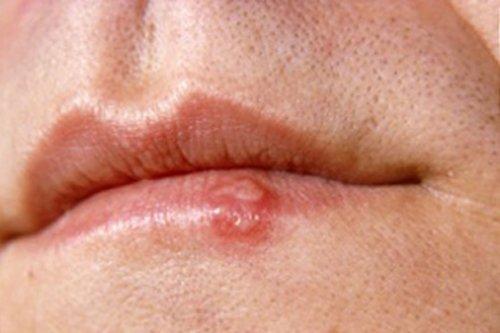 Ferida nos lábios que não cicatriza