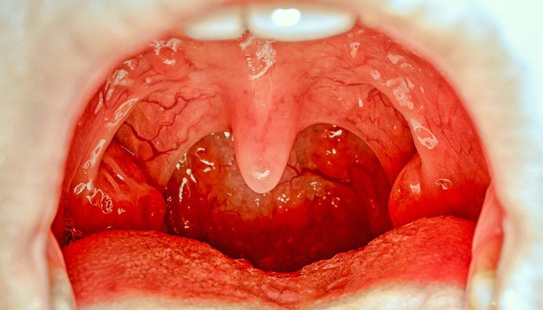 Céu da boca amarelado é grave? Causas e tratamento