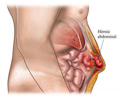 Como surgem as dores abdominais do lado direito