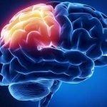 Dor de cabeça do lado esquerdo - Acidente vascular cerebral