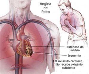 Dor no peito e nas costas