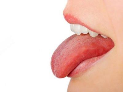 Causas das aftas na língua