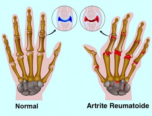 dor nas juntas dos dedos