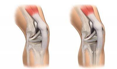 Indicações de Artroscopia de joelho