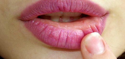labios rachados e ardendo