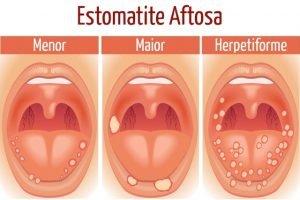 remédio para afta na língua