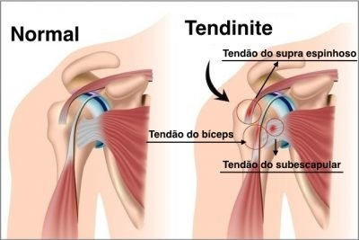 causas da dor nas articulações