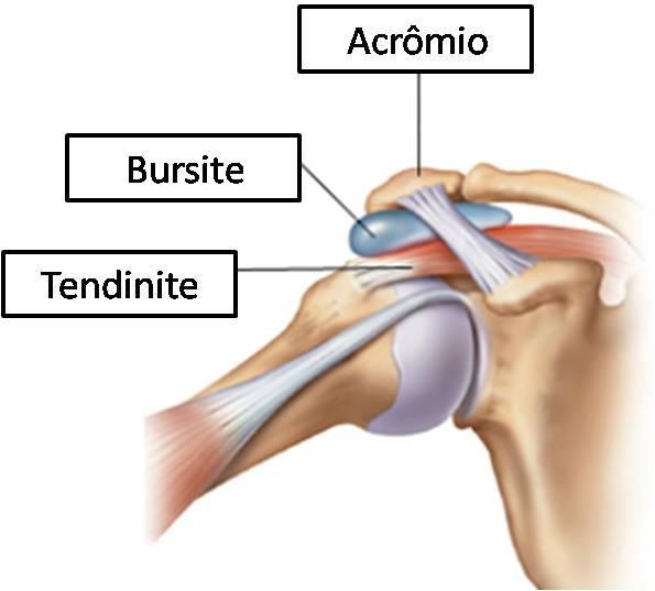 Exercícios para curar tendinite