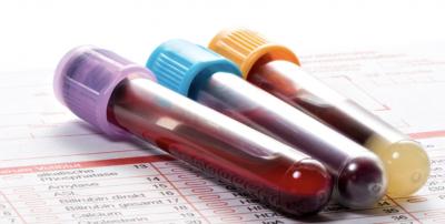 Jejum de 12h para exame de sangue