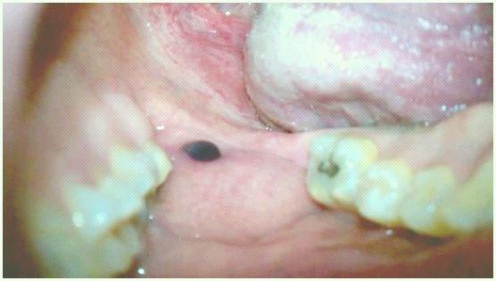 Bolha de sangue na boca